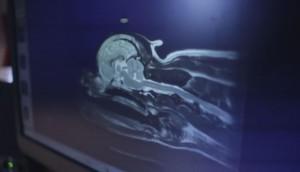 24/7 On-Site MRI